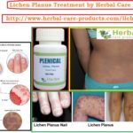 10 Natural Remedies for Lichen Planus